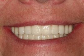 Full Upper and Lower Implant Case (11 Implants)