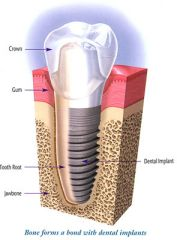 Implant Tooth Anatomy